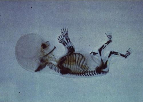 X-Ray-fetus-2-Months.jpg